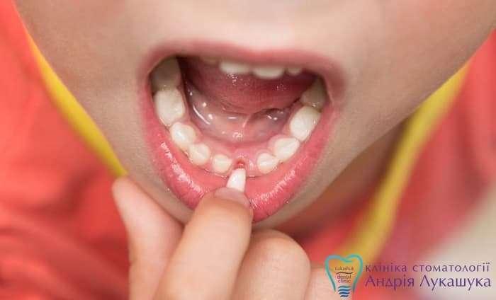 Когда начинают выпадать молочные зубки?